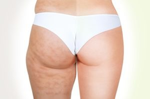 CELLULITE e GAMBE GONFIE
